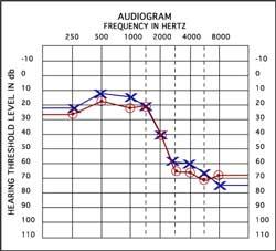 Audiogram sample